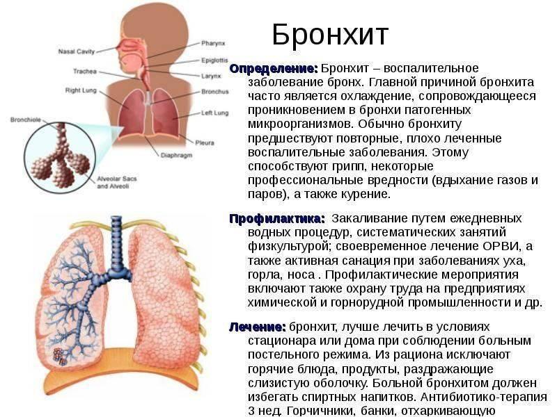 """Пневмония. что нужно знать о воспалении легких - бу  """"республиканское бюро судебно-медицинской экспертизы"""" минздрава чувашии"""