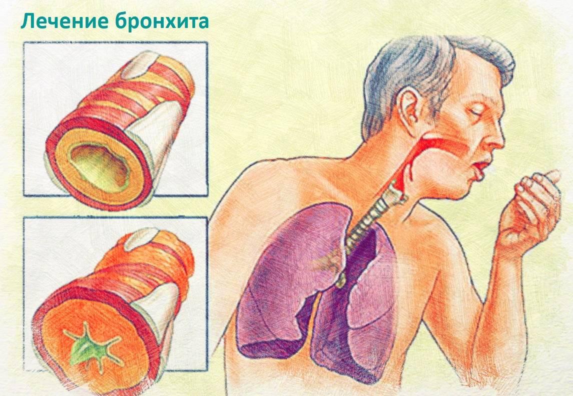 Воспаление легких (пневмония)
